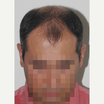 35-44 year old man treated with FUE Hair Transplant before 3682567