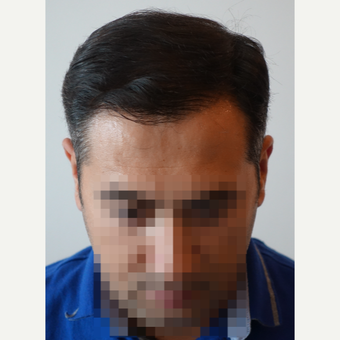 35-44 year old man treated with FUE Hair Transplant after 3682567