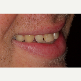 25-34 year old man treated with Porcelain Veneers before 2696770