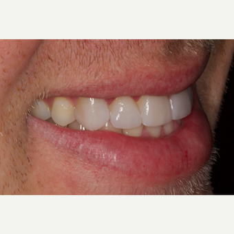 25-34 year old man treated with Porcelain Veneers after 2696770