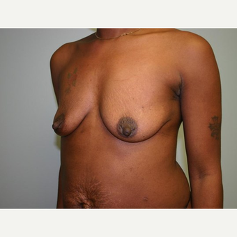 Breast Augmentation before 3560729