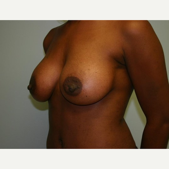 Breast Augmentation after 3560729