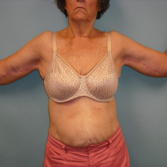 65-74 year old woman treated with Arm Lift after 3396959