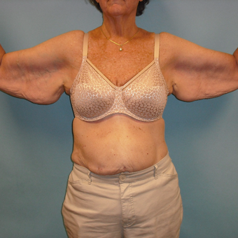 65-74 year old woman treated with Arm Lift before 3396959