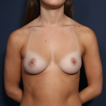 18-24 year old woman treated with Breast Augmentation before 3037175