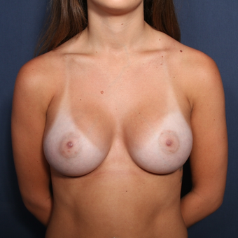 18-24 year old woman treated with Breast Augmentation after 3037175