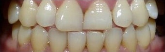 6 Month Straight teeth before 3135235