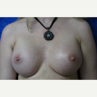 35-44 year old woman treated with Breast Implants after 3301204