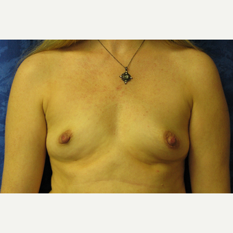35-44 year old woman treated with Breast Implants before 3301204