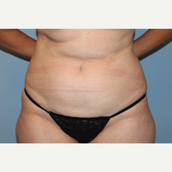 45-54 year old woman treated with Tummy Tuck before 3588243