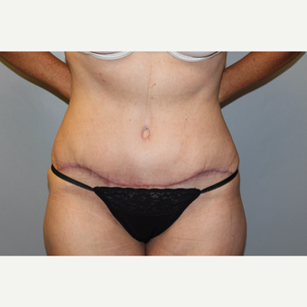 45-54 year old woman treated with Tummy Tuck after 3588243