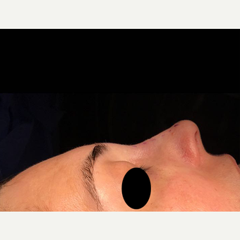 25-34 year old woman treated with Rhinoplasty after 3211728
