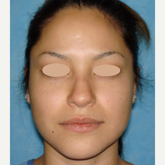 18-24 year old woman treated with Rhinoplasty before 3660147