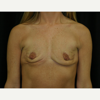 35-44 year old woman treated with Breast Reconstruction before 3605215