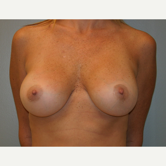 35-44 year old woman treated with Breast Reconstruction after 3605215