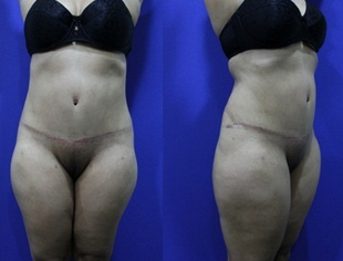 Abdominoplasty (aka Tummy Tuck) 1252407