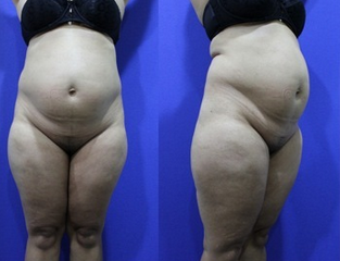 Abdominoplasty (aka Tummy Tuck) before 1252407