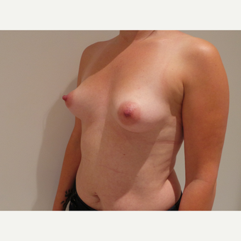 25-34 year old woman treated with Breast Implants before 3765695