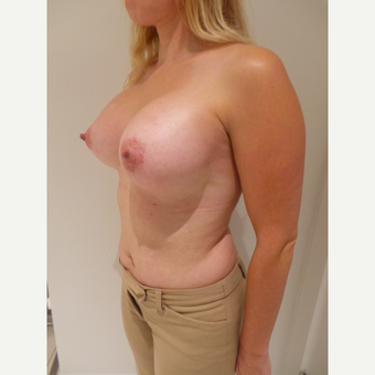 25-34 year old woman treated with Breast Implants after 3765695