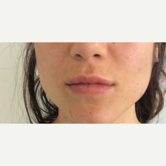 Juvederm Lip Augmentation after 3042502