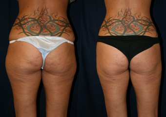 SmartLipo before 996923