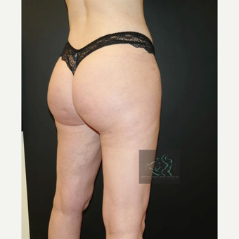 35-44 year old woman treated with Brazilian Butt Lift after 3076079