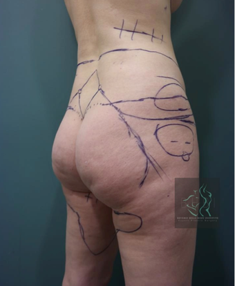 35-44 year old woman treated with Brazilian Butt Lift before 3076079