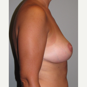 35-44 year old woman treated with Breast Lift after 3134458