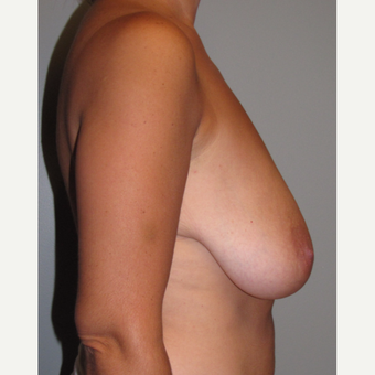 35-44 year old woman treated with Breast Lift before 3134458