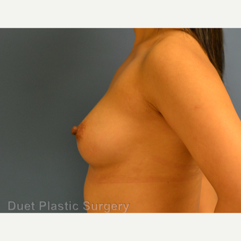 25-34 year old woman treated with Breast Augmentation before 3342114