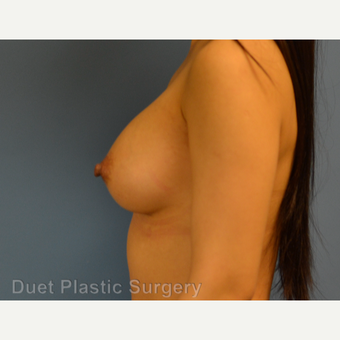 25-34 year old woman treated with Breast Augmentation after 3342114
