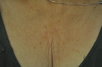 59 Year Old Woman Treated for Laxity on Chest before 1263337