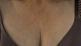 59 Year Old Woman Treated for Laxity on Chest