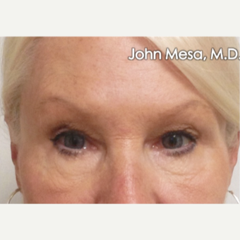 45-54 year old woman treated with Eye Bags Treatment before 3659880