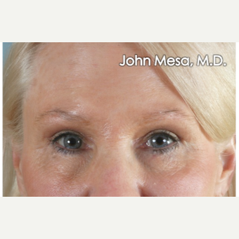 45-54 year old woman treated with Eye Bags Treatment after 3659880