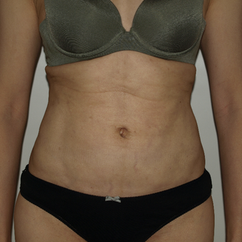 35-44 year old woman treated with Vaser Liposuction after 3819050