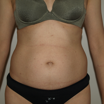 35-44 year old woman treated with Vaser Liposuction before 3819050