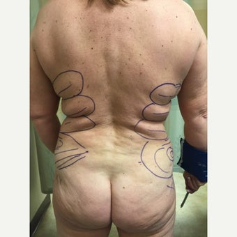 45-54 year old woman treated with Laser Liposuction before 2618682