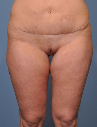 31 Year Old Female Treated For Inner Thigh Sagging/Fullness