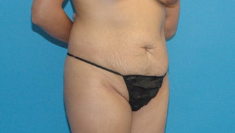 30 year old woman treated with Tummy Tuck before 3004984