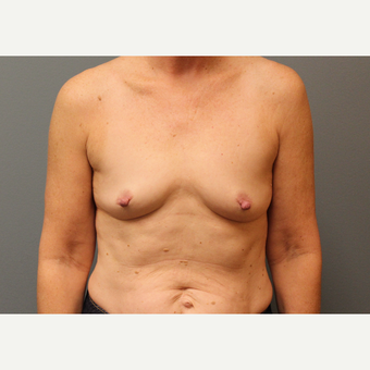 45-54 year old woman treated with Breast Augmentation before 3253884