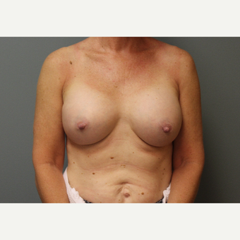 45-54 year old woman treated with Breast Augmentation after 3253884