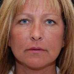 Woman treated with Juvederm