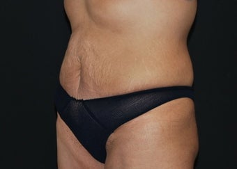 CoolSculpting  after 1514606