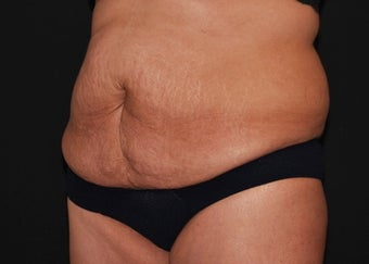 CoolSculpting  before 1514606