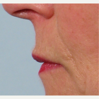 55-64 year old woman treated with Lip Lift before 2765807