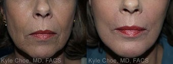 Dermabrasion for vertical upper lip lines before 1459562