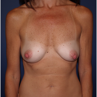 45-54 year old woman treated with Breast Augmentation before 3287248