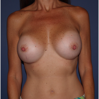 45-54 year old woman treated with Breast Augmentation after 3287248