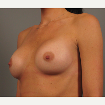25-34 year old woman treated with Endo-Axillary Breast Augmentation after 3258337